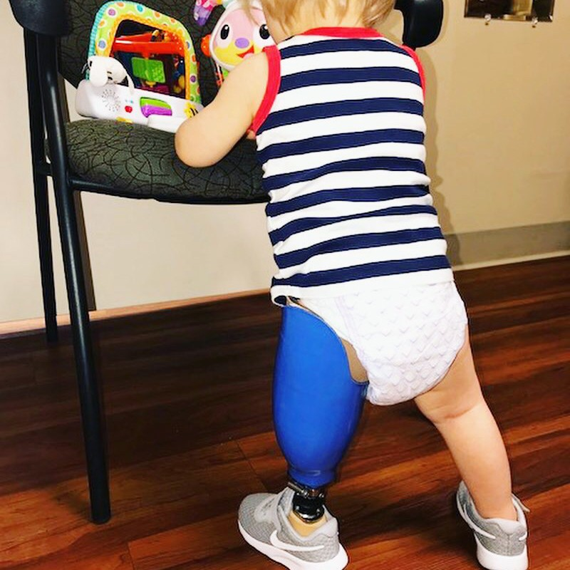 toddler with blue prosthetic leg