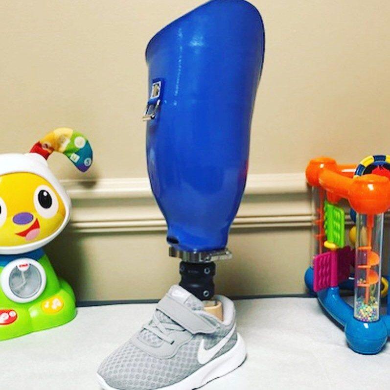 blue prosthetic leg