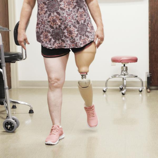 upper limb prostheses