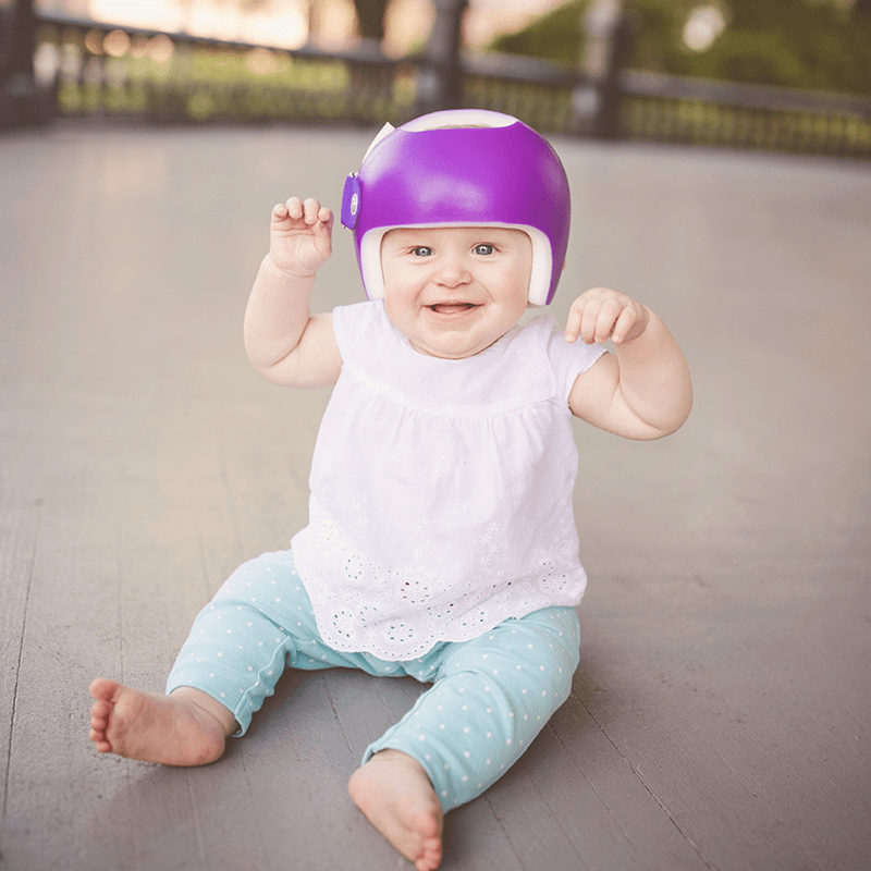baby with a cranial molding helmet