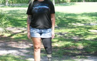 female with leg prosthesis