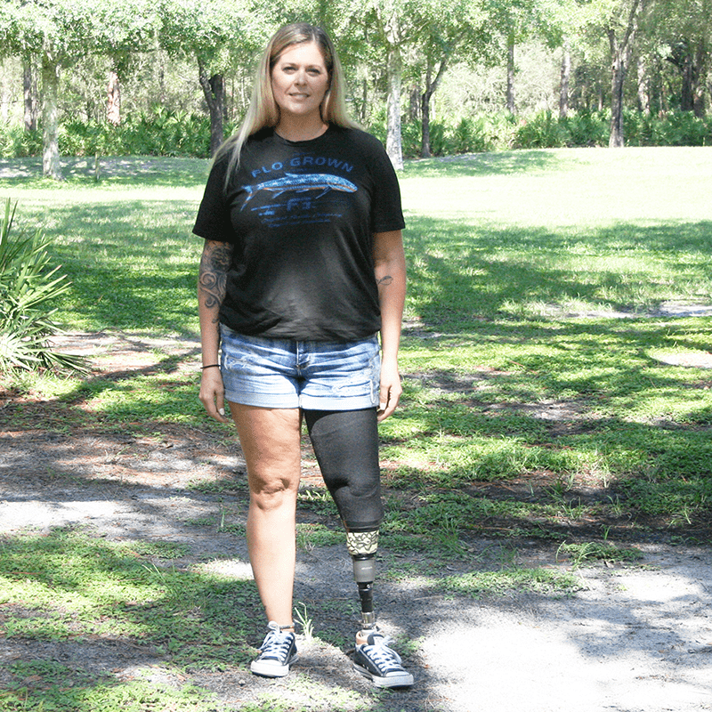 female with leg prosthesis