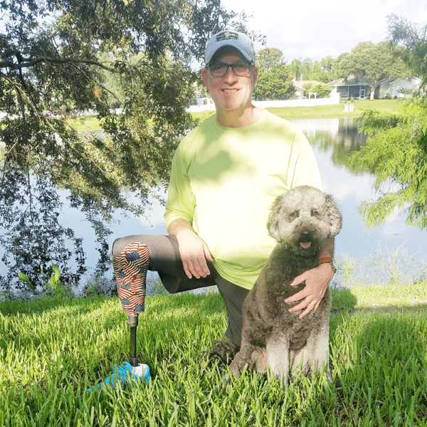man with prosthetic leg and his dog
