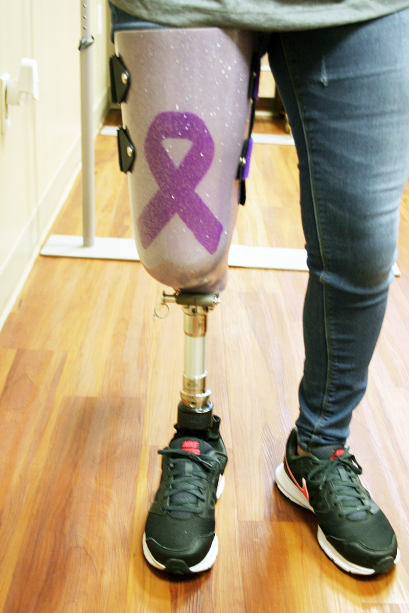woman with a prosthetic leg walking