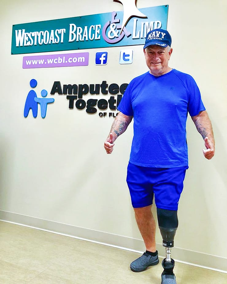 leg amputee man, patient at clinic giving thumbs up