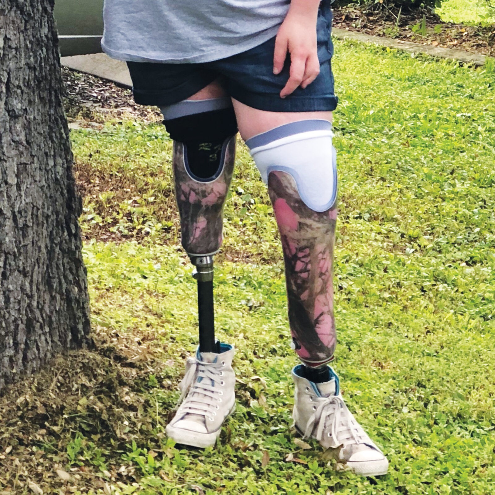 teenager with prosthetic legs