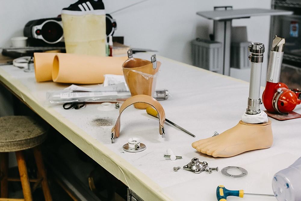 prosthetic leg fabrication