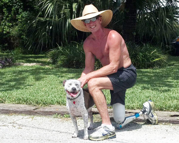 Man with knee disarticulation amputation wearing a prosthetic leg kneeling with dog
