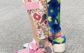 Wedged AFO for Toe-walker kids
