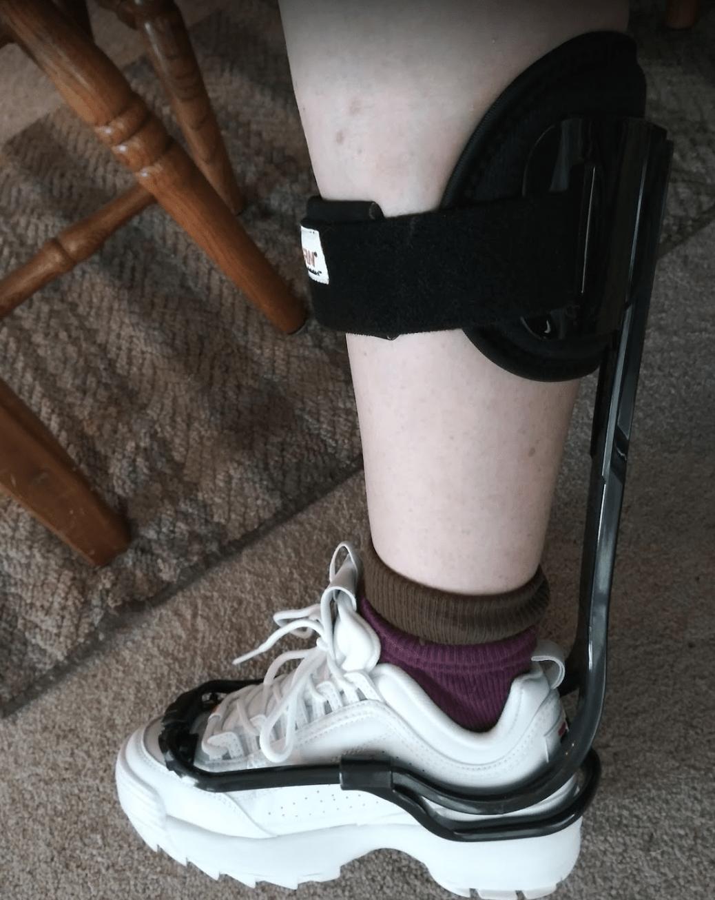 Woman's leg wearing a TurboMed AFO