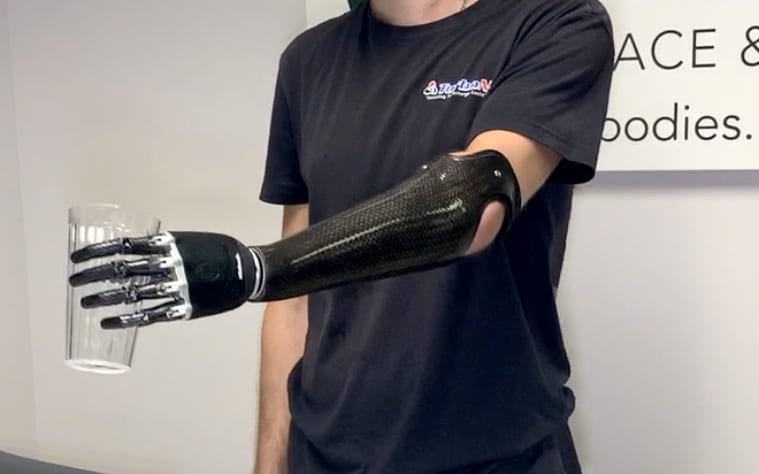 Post TMR patient with myoelectric prosthetic arm