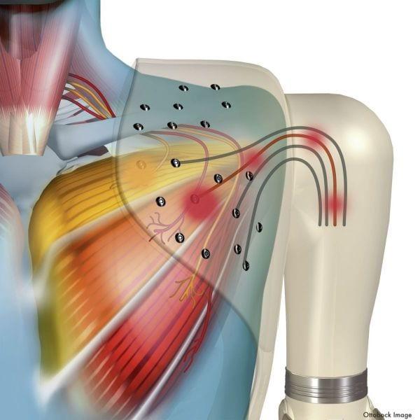Anatomical image of shoulder showing TMR procedure nerve diagram