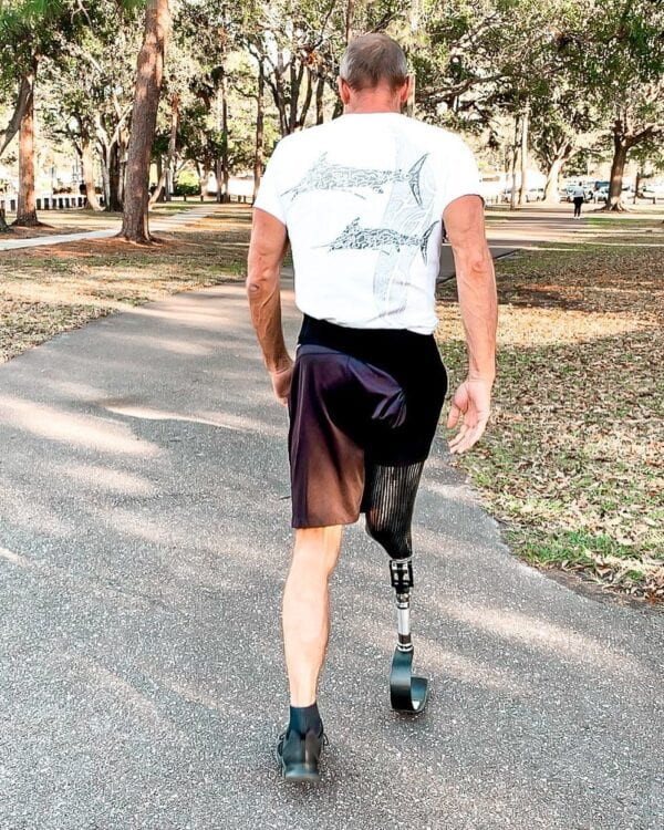 Man with knee disarticulation amputation wearing a prosthetic running leg