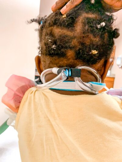 Back of Baby Girl's head with a Tot Collar on. unique orthotic case requires innovative solution to keep baby's head up