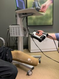 Digital Scanning of a lower extremity amputee's residual limb, new technology
