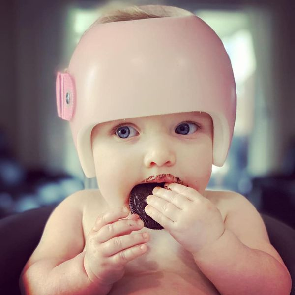 infant wearing Starband cranial remolding helmet