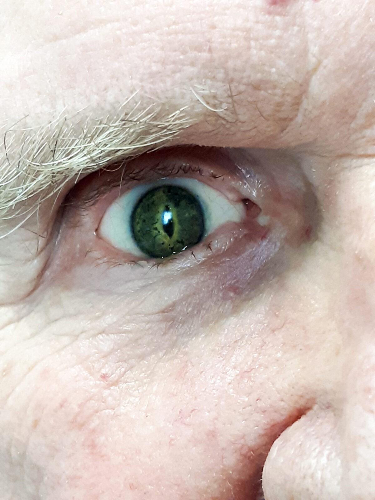 ocular prosthesis or prosthetic eye custom painted serpent pupil